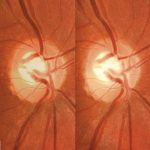 DRS, Stereo pair