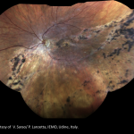 Primary retinal detachment repair