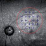 maia-Multi Fixation Target