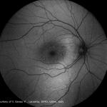 Central-Serous-Chorioretinopathy_AF-