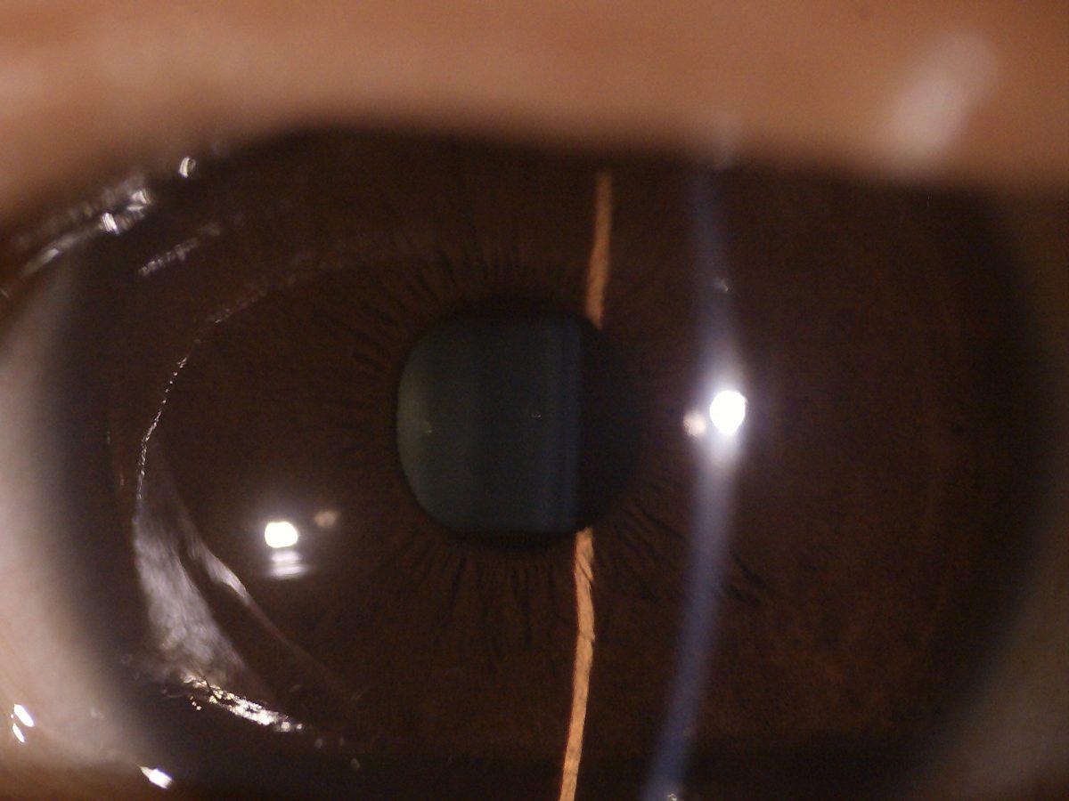 DEA 200 - Through the scope