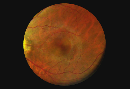 Horus Digital Fundus Camera_DEC 100 - through the scope